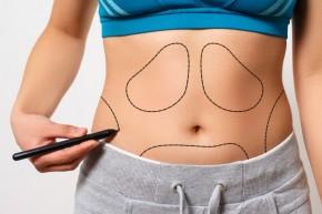 Pilvo riebalų šalinimas